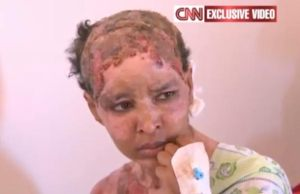 https://moemaka.files.wordpress.com/2011/08/ethiopian-shweyga-mullah-a-nanny-for-hannibal-and-aline-gadhafi-says-aline-burned-her-with-boiling-water-pic-cnn-536415042.jpg?w=300